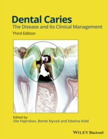 Dental Caries : The Disease and its Clinical Management, Hardback Book