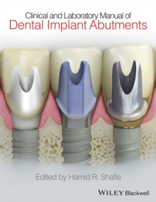 Clinical and Laboratory Manual of Dental Implant Abutments, Hardback Book