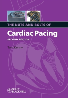 The Nuts and Bolts of Cardiac Pacing, Paperback / softback Book