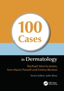 100 Cases in Dermatology, Paperback / softback Book