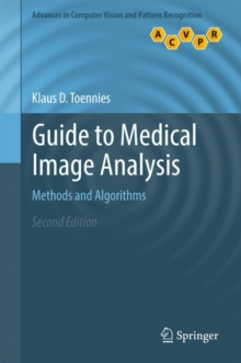 Guide to Medical Image Analysis : Methods and Algorithms, Hardback Book