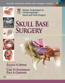 Master Techniques in Otolaryngology - Head and Neck Surgery: Skull Base Surgery, Hardback Book