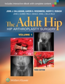 The Adult Hip (Two Volume Set) : Hip Arthroplasty Surgery, Multiple copy pack Book