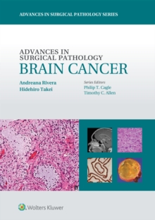 Advances in Surgical Pathology: Brain Cancer, Hardback Book