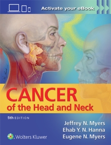 Cancer of the Head and Neck, Hardback Book