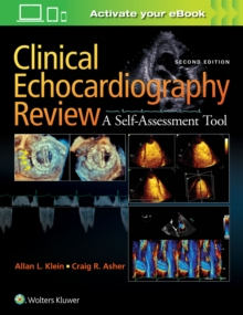 Clinical Echocardiography Review, Paperback / softback Book
