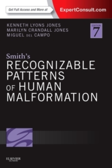 Smith's Recognizable Patterns of Human Malformation : Expert Consult - Online and Print, Hardback Book