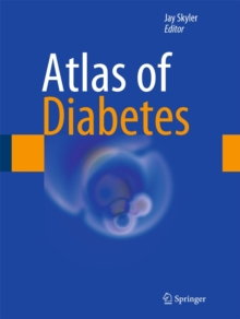 Atlas of Diabetes, Hardback Book