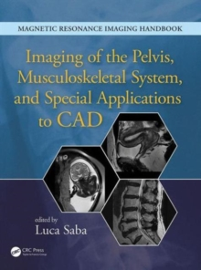 Imaging of the Pelvis, Musculoskeletal System, and Special Applications to CAD, Hardback Book