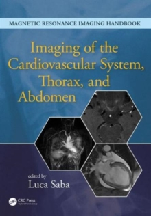 Imaging of the Cardiovascular System, Thorax, and Abdomen, Hardback Book
