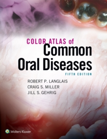 Color Atlas of Common Oral Diseases, Paperback / softback Book