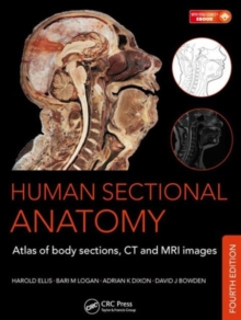 Human Sectional Anatomy : Atlas of Body Sections, CT and MRI Images, Fourth Edition, Mixed media product Book