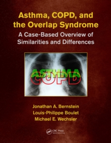 Asthma, COPD, and Overlap : A Case-Based Overview of Similarities and Differences, Paperback / softback Book