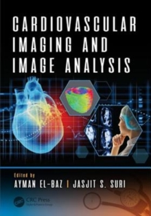 Cardiovascular Imaging and Image Analysis, Hardback Book