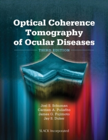 Optical Coherence Tomography of Ocular Diseases, Hardback Book
