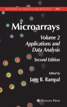 Microarrays : Volume 2, Applications and Data Analysis, Hardback Book
