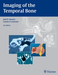 Imaging of the Temporal Bone, Hardback Book