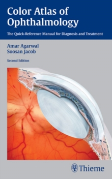 Color Atlas of Ophthalmology : The Quick-Reference Manual for Diagnosis and Treatment, Paperback / softback Book