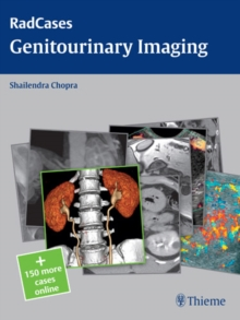 Radcases Genitourinary Imaging, Paperback / softback Book