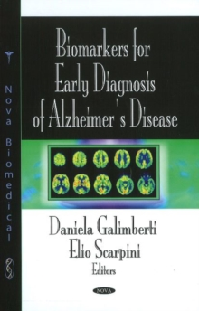 Biomarkers for Early Diagnosis of Alzheimer's Disease, Hardback Book