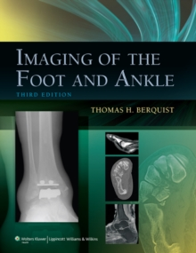 Imaging of the Foot and Ankle, Hardback Book