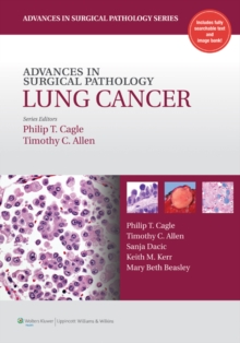 Advances in Surgical Pathology: Lung Cancer, Hardback Book