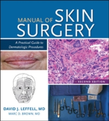 Manual of Skin Surgery : A Practical Guide to Dermatologic Procedures, Paperback Book