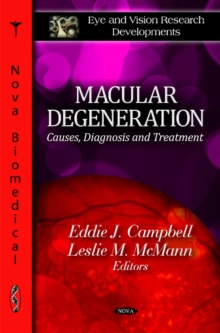 Macular Degeneration : Causes, Diagnosis & Treatment, Hardback Book
