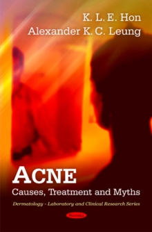 Acne : Causes, Treatment & Myths, Paperback / softback Book