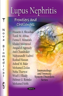 Lupus Nephritis : Frontiers & Challenges, Paperback Book