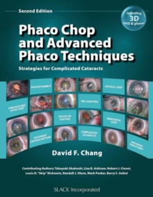 Phaco Chop and Advanced Phaco Techniques : Strategies for Complicated Cataracts, Mixed media product Book