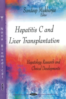 Hepatitis C & Liver Transplantation, Hardback Book