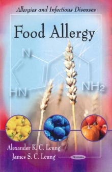 Food Allergy, Paperback / softback Book
