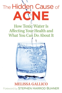 The Hidden Cause of Acne : How Toxic Water Is Affecting Your Health and What You Can Do about It, Paperback Book