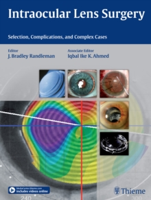 Intraocular Lens Surgery : Selection, Complications, and Complex Cases, Hardback Book