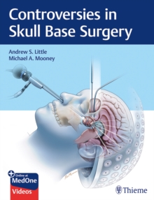 Controversies in Skull Base Surgery, Hardback Book