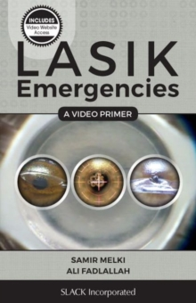 LASIK Emergencies : A Video Primer, Paperback / softback Book