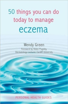 50 Things You Can Do Today to Manage Eczema, Paperback Book