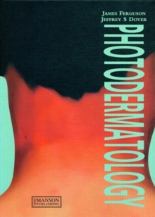 Photodermatology, Hardback Book