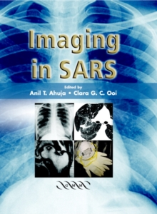 Imaging in SARS, Hardback Book