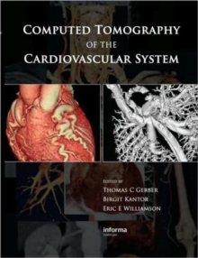 Computed Tomography of the Cardiovascular System, Hardback Book