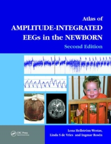 An Atlas of Amplitude-Integrated EEGs in the Newborn, Second Edition, Hardback Book