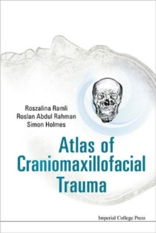 Atlas Of Craniomaxillofacial Trauma, Hardback Book