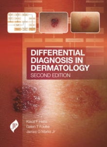 Differential Diagnosis in Dermatology, Hardback Book