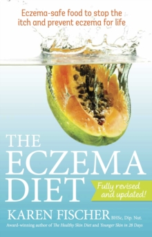 The Eczema Diet : Eczema-safe Food to Stop the Itch and Prevent Eczema for Life, Paperback Book