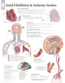 Atrial Fib & Ischemic Strokes Laminated Poster, Wallchart Book