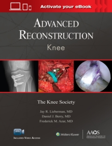 Advanced Reconstruction: Knee: Print + Ebook with Multimedia, Hardback Book