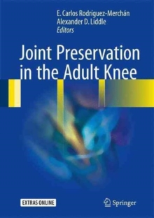 Joint Preservation in the Adult Knee, Hardback Book