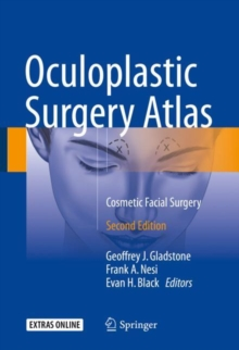 Oculoplastic Surgery Atlas : Cosmetic Facial Surgery, Hardback Book