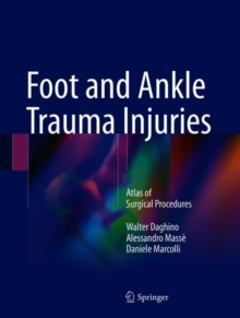 Foot and Ankle Trauma Injuries : Atlas of Surgical Procedures, Hardback Book